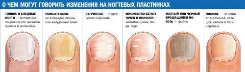 Ось на що можуть вказувати некрасиві нігті