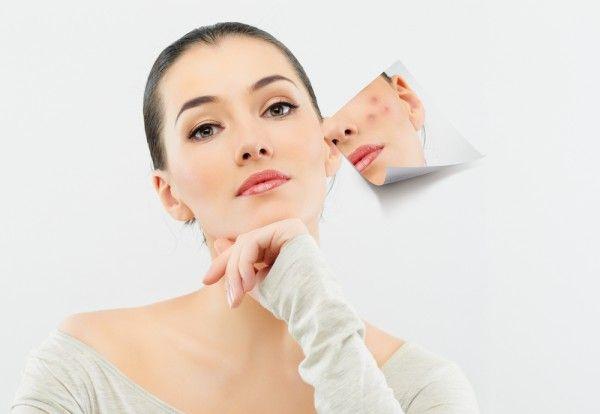 Як прибрати сліди від прищів на обличчі в домашніх умовах і салоні