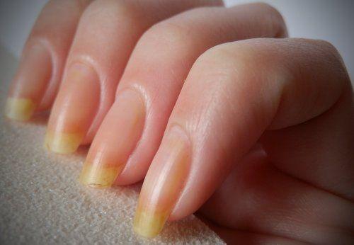 Навіть після того як йод вбереться, на нігтях зберігається неприємний жовтий колір