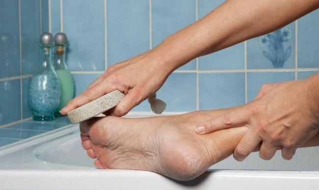 Як доглядати за шкірою стоп