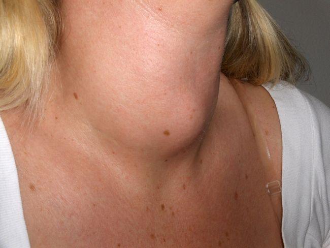 Вузловий зоб щитовидної залози: причини, симптоми і лікування народними засобами